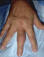 hovne vonde fingerledd